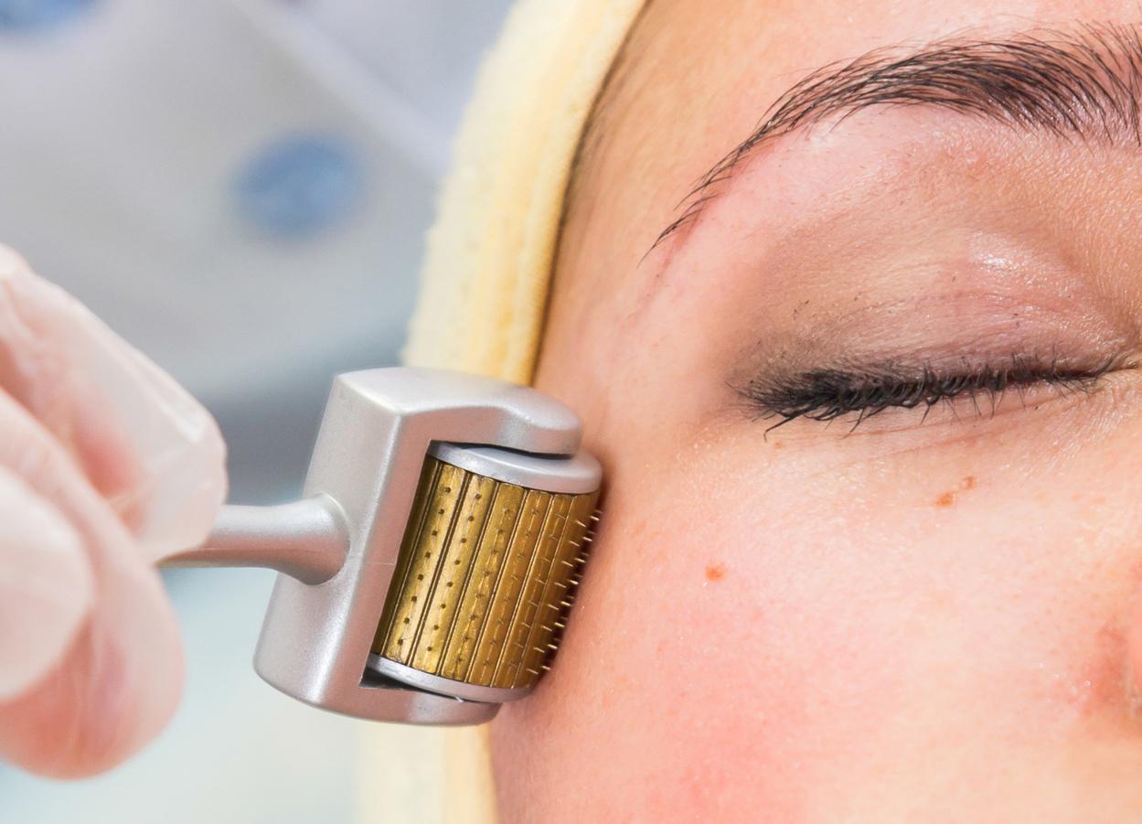 Dermaroller Skin Rejuvenation Pure Aesthetics