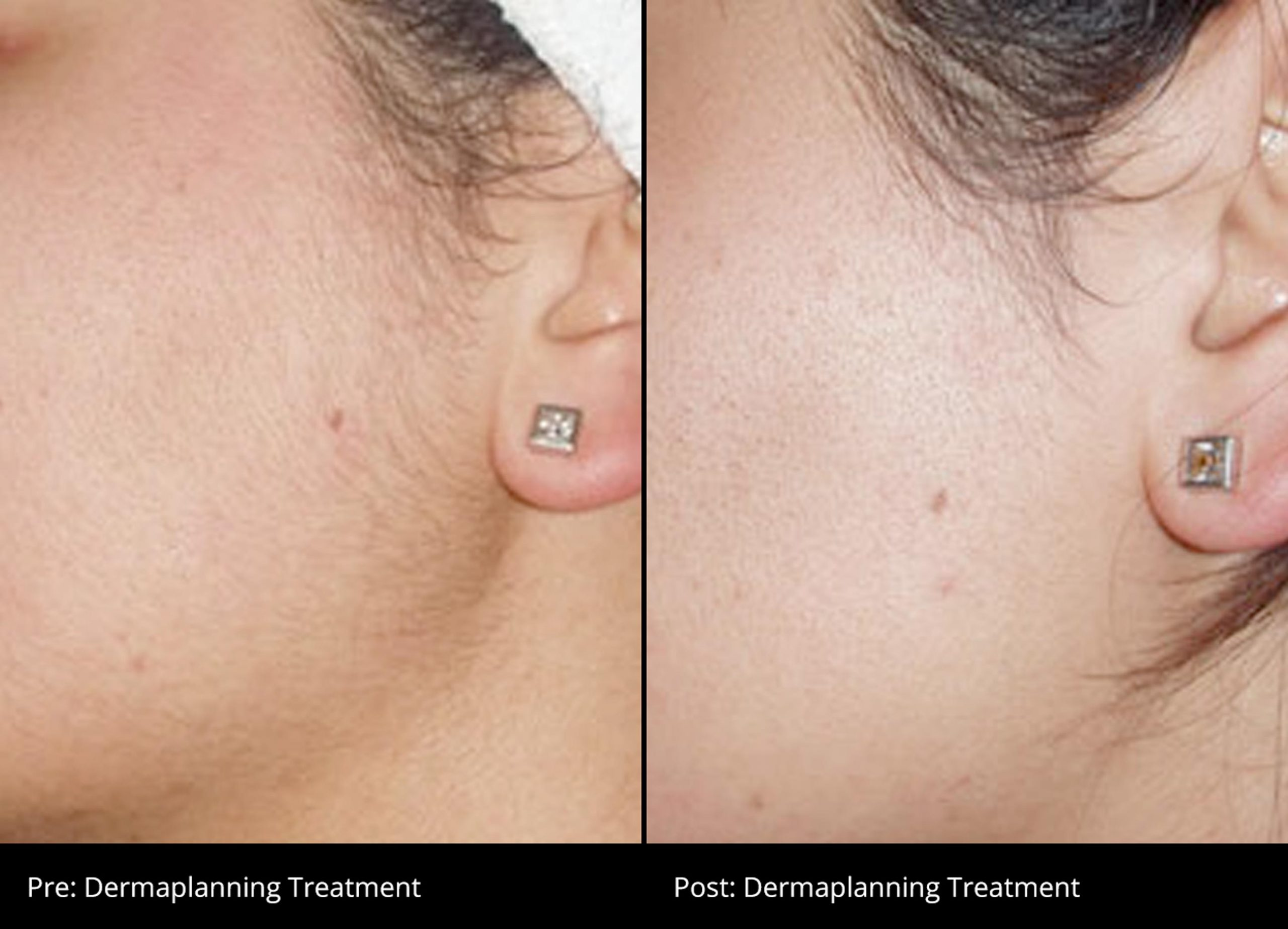 Dermaplanning before and after